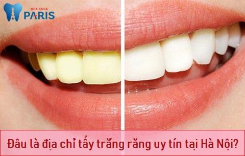 Địa chỉ tẩy trắng răng uy tín tại Hà Nội là điều nhiều khách hàng tìm kiếm