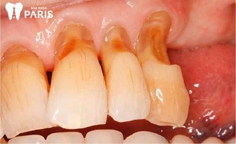 Mòn cổ răng là 1 trong những nguyên nhân khiến ê buốt răng sau khi tẩy trắng