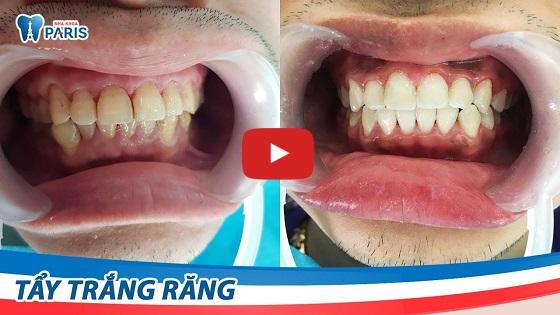 tẩy trắng răng xỉn màu bằng công nghệ tẩy trắng răng WhiteMax