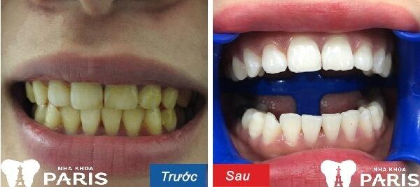 Hình ảnh trước và sau khi làm trắng răng laser