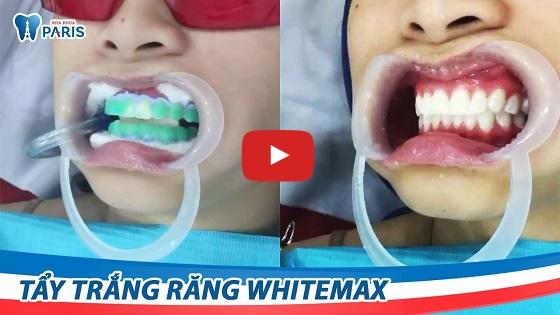 Cận cảnh tẩy trắng răng tại Đà Nẵng bằng công nghệ WhiteMax