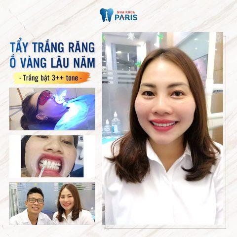 Khách hàng tẩy trắng răng thành công tại Đà Nẵng 2