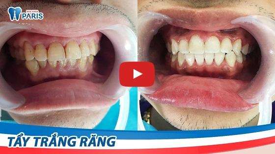 Tẩy trắng răng bằng Laser có hại không với công nghệ WhiteMax
