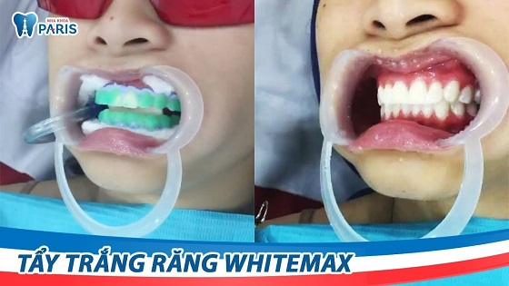 Công nghệ WhiteMax giúp đem đến hàm răng trắng sáng hoàn hảo