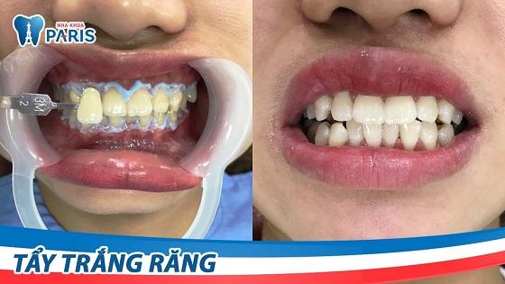 Công nghệ tẩy trắng răng WhiteMax giúp răng trắng sáng bật tông