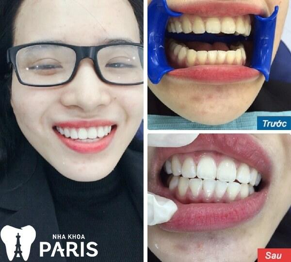 Chị Lê Thị Giang - Khách hàng đã được thay đổi bật 5 tone so với màu răng cũ