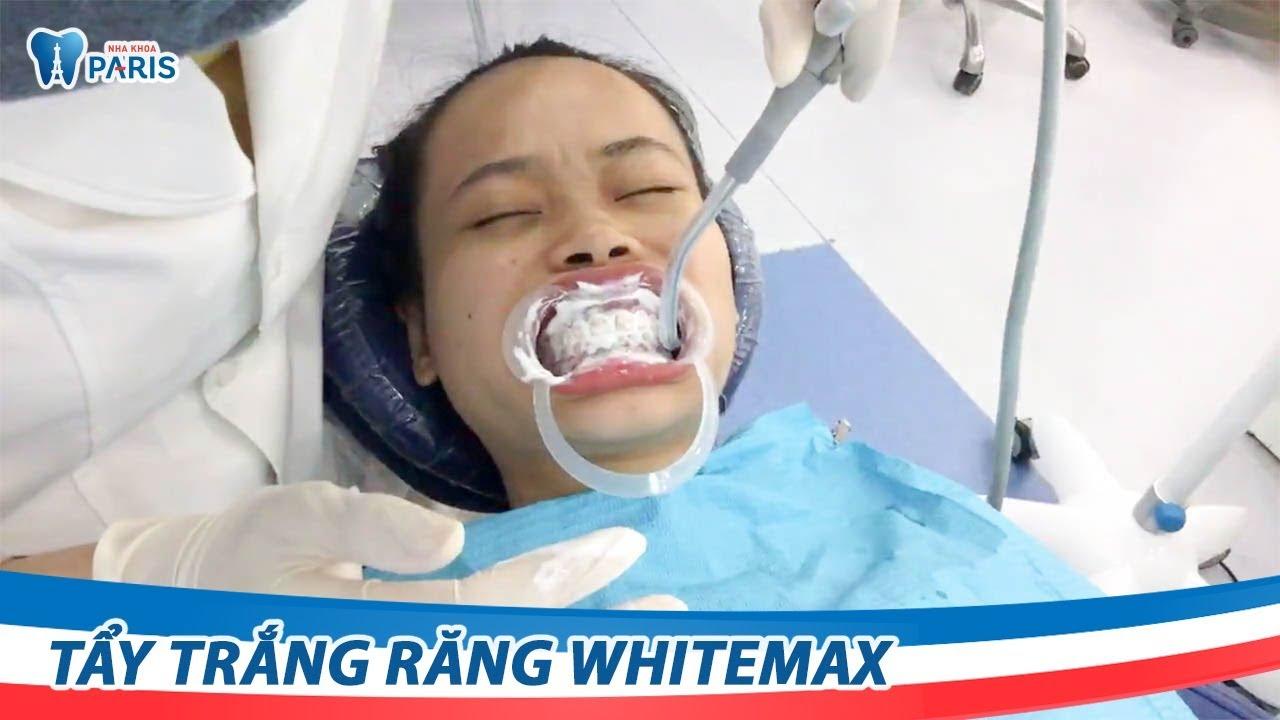 Tẩy trắng răng bằng công nghệ WhiteMax tân tiến