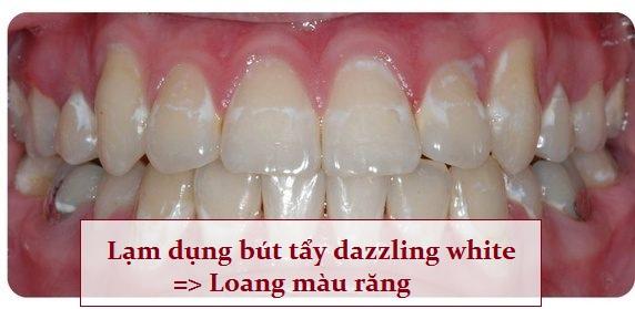 Hiệu quả tẩy trắng răng bằng bút Dazzling White không cao - dễ bị loang màu