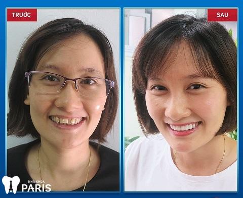 Khách hàng răng khấp khểnh, nhiễm màu nặng thay đổi hoàn toàn khi bọc răng sứ.