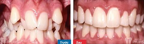 Khắc phục nhiều ca răng khó bằng niềng răng trong suốt.
