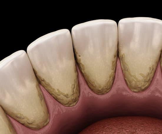Vôi răng là nguyên nhân gây ra nhiều bệnh răng miệng